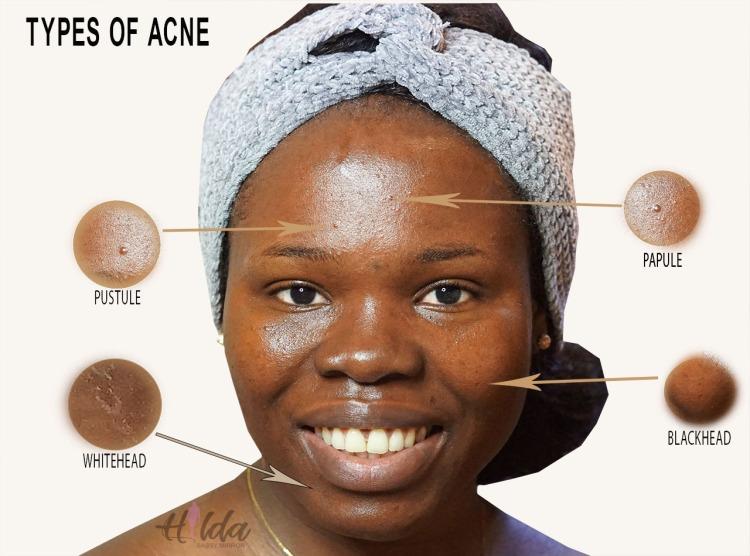 Face disease